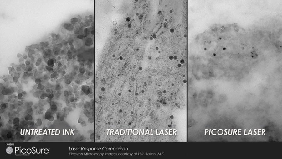 PicoSure_vs_Yag_Laser_Elektronen_Mikroskop