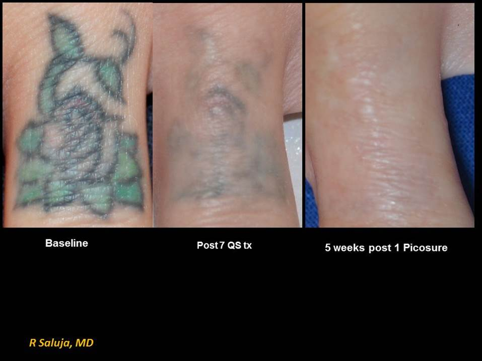 Tattooentfernung PicoSure vs. Nd:Yag Laser