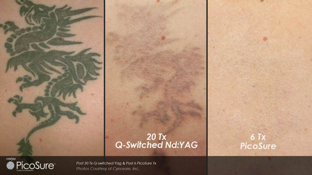 Tattooentfernung_PicoSure_vs_Yag_Laser_02