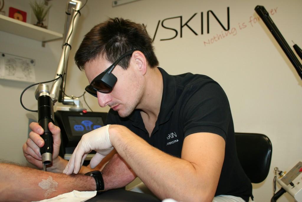 Dr. Matthias Brandstetter bei einer Laser-Tattooentfernung